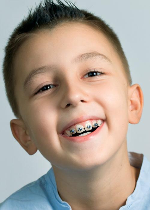 Braces 101 | Orthodontist Saratoga CA | William Yao ...
